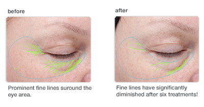dermalogica-bioactive-peel-before-and-after