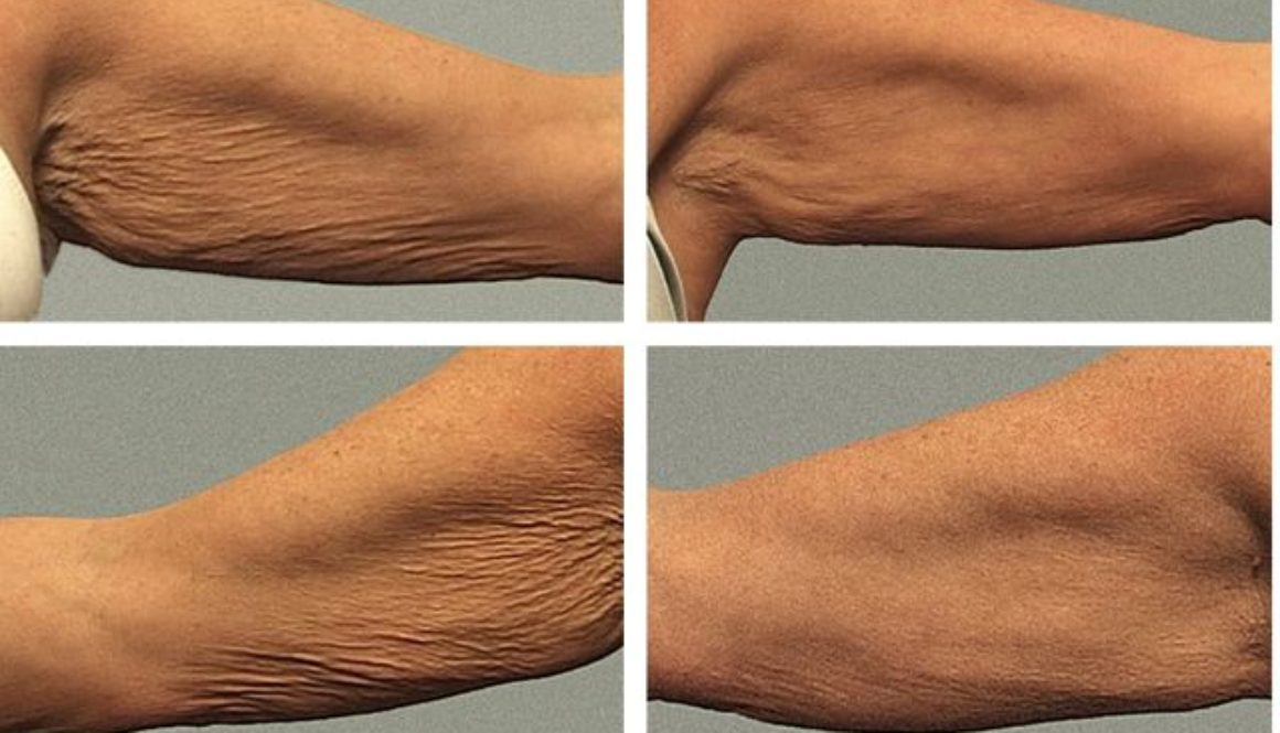 Arm treatment by John Stratis MD. Pre and 3mo follow up.